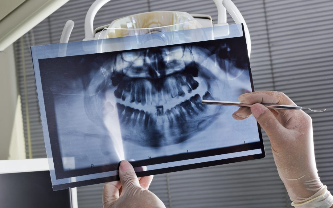 What to expect at your first dental implant consultation?