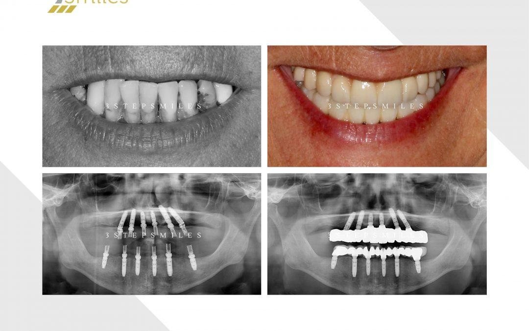 Implant rehabilitation with zirconia teeth