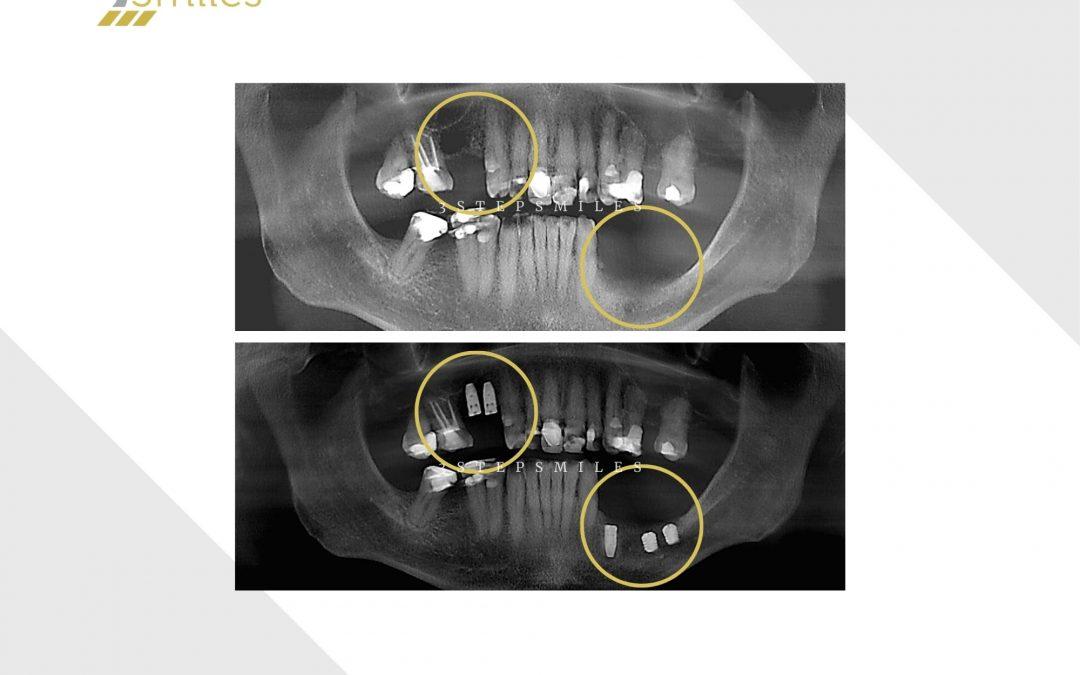 Upper bone graft and lower short implants