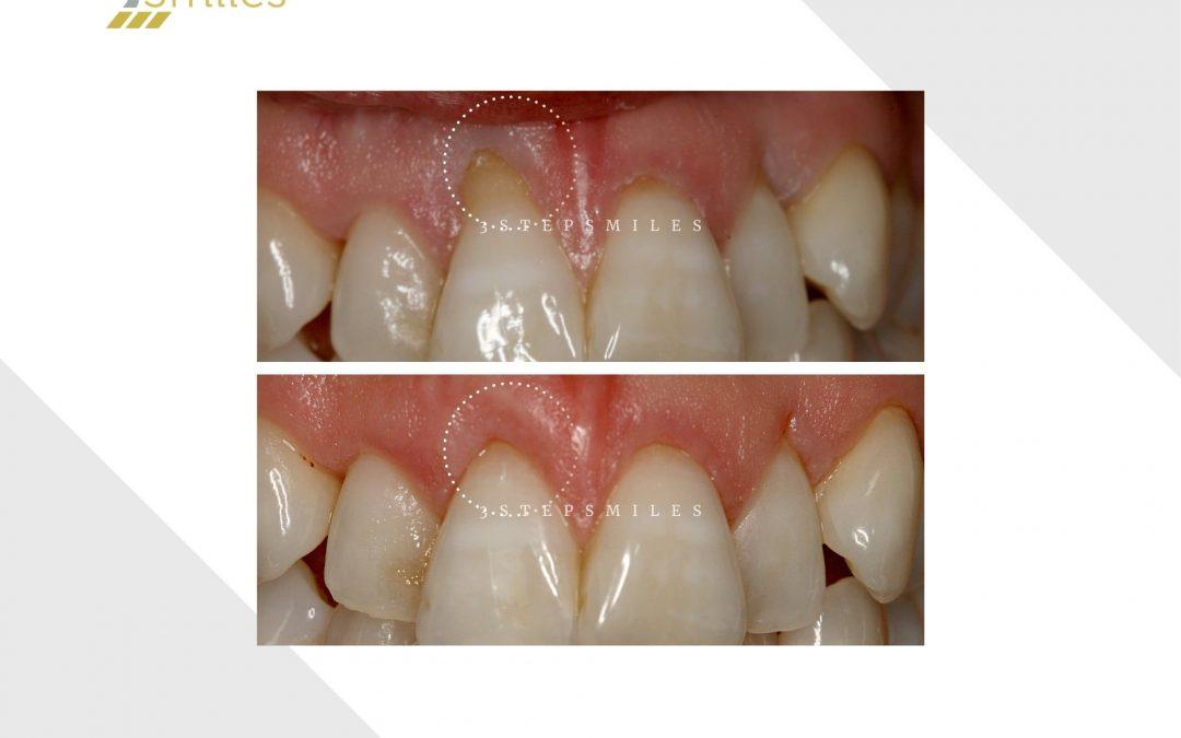 Front incisor gum graft