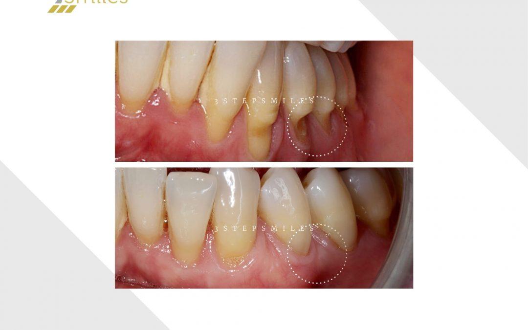 Canine and premolars gum graft