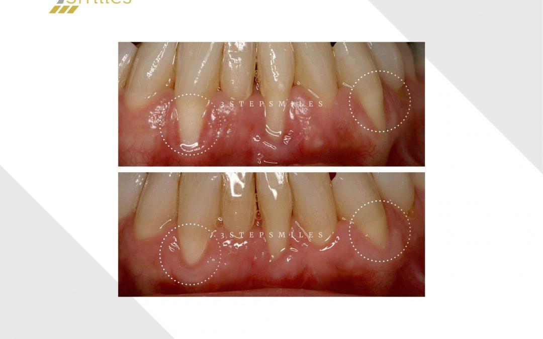 Gum graft in lower arch