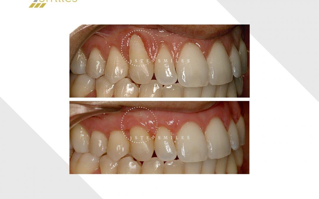3 teeth gum graft