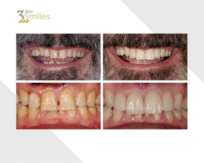 upper and lower zirconia crowns