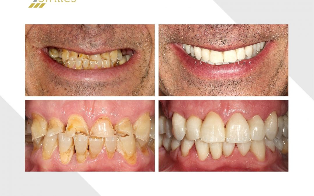 12 zirconia crowns upper and lower due to teeth grinding