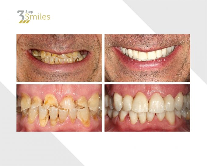 zirconia crowns upper and lower
