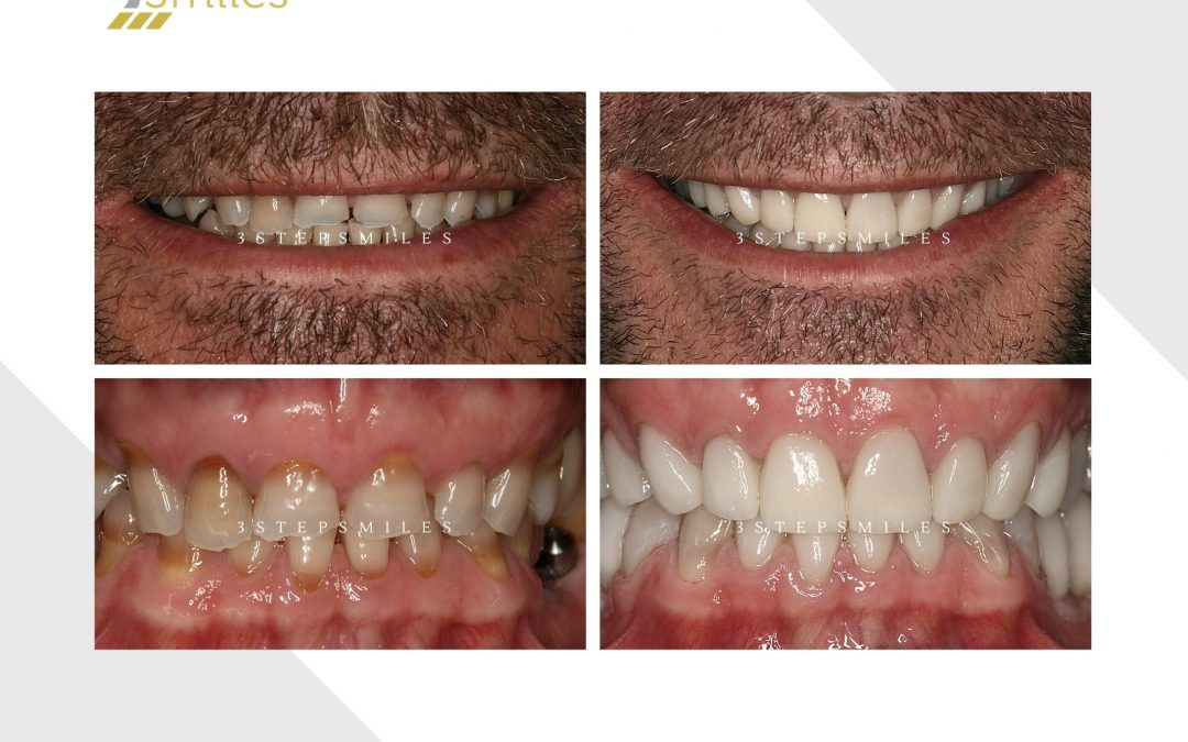 Bruxism rehabilitation with crowns